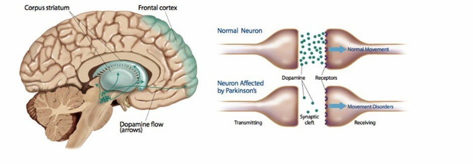 A brain diagram showing neurotransmitter dopamine sending a signal related to pleasure, credit to  Delilah R. Cohn