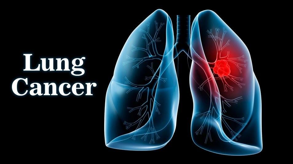 Lung Cancer Diagram