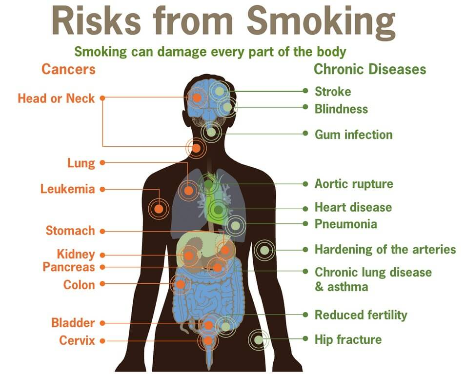 Risks of Smoking Marijuana